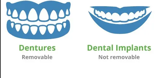 dentures and implants..